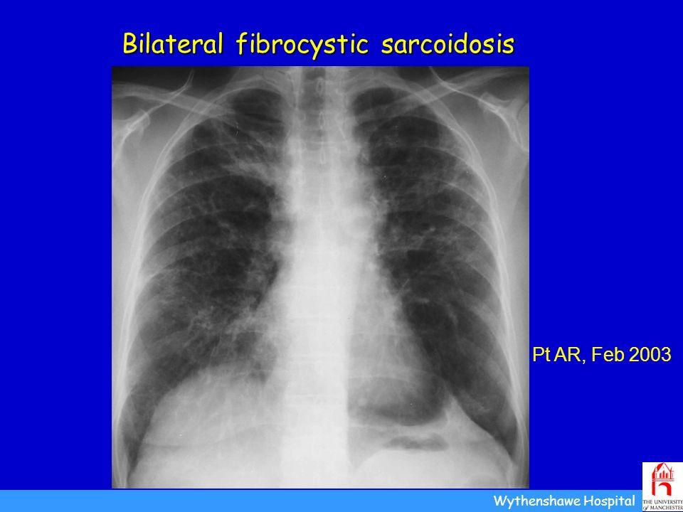 Bilateral fibrocystic sarcoidosis Wythenshawe Hospital Pt AR, Feb 2003