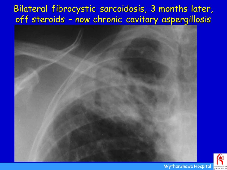 Bilateral fibrocystic sarcoidosis, 3 months later, off steroids – now chronic cavitary aspergillosis Wythenshawe Hospital Pt AR, July 2004 Larger aspe