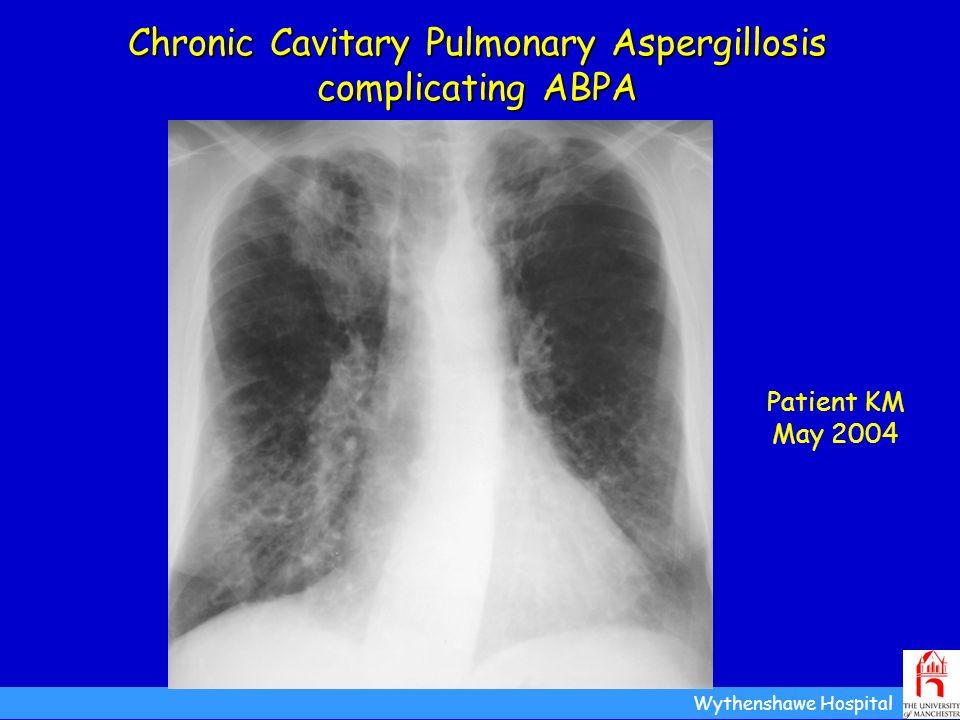 Chronic Cavitary Pulmonary Aspergillosis complicating ABPA Patient KM May 2004 Wythenshawe Hospital