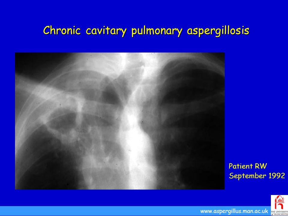 Chronic cavitary pulmonary aspergillosis Patient RW September 1992 www.aspergillus.man.ac.uk