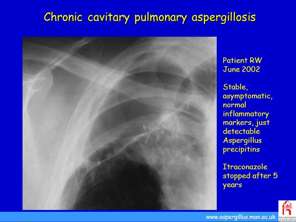 Chronic cavitary pulmonary aspergillosis Patient RW June 2002 Stable, asymptomatic, normal inflammatory markers, just detectable Aspergillus precipiti