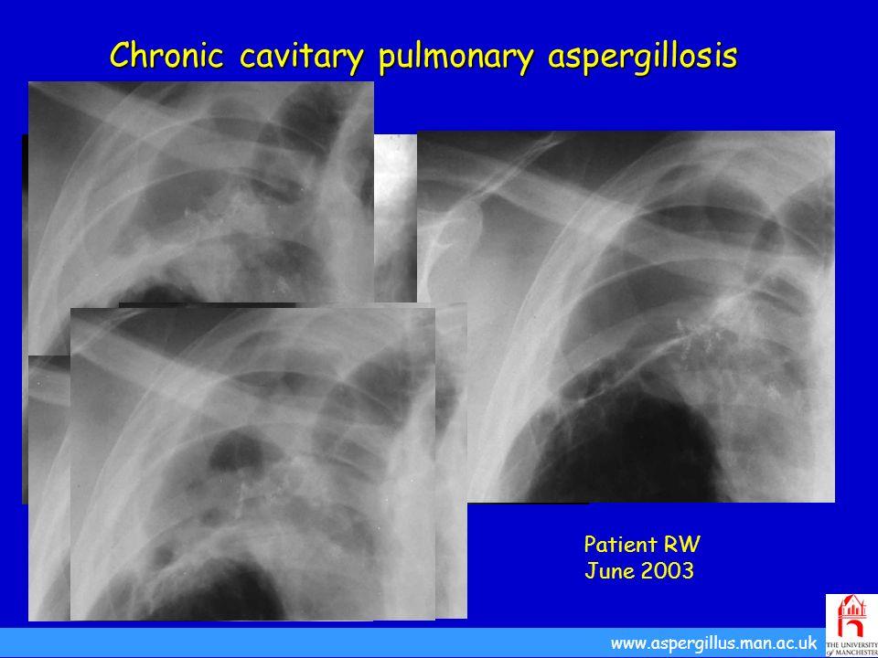 Patient RW September 1992 Chronic cavitary pulmonary aspergillosis www.aspergillus.man.ac.uk Patient RW June 2003