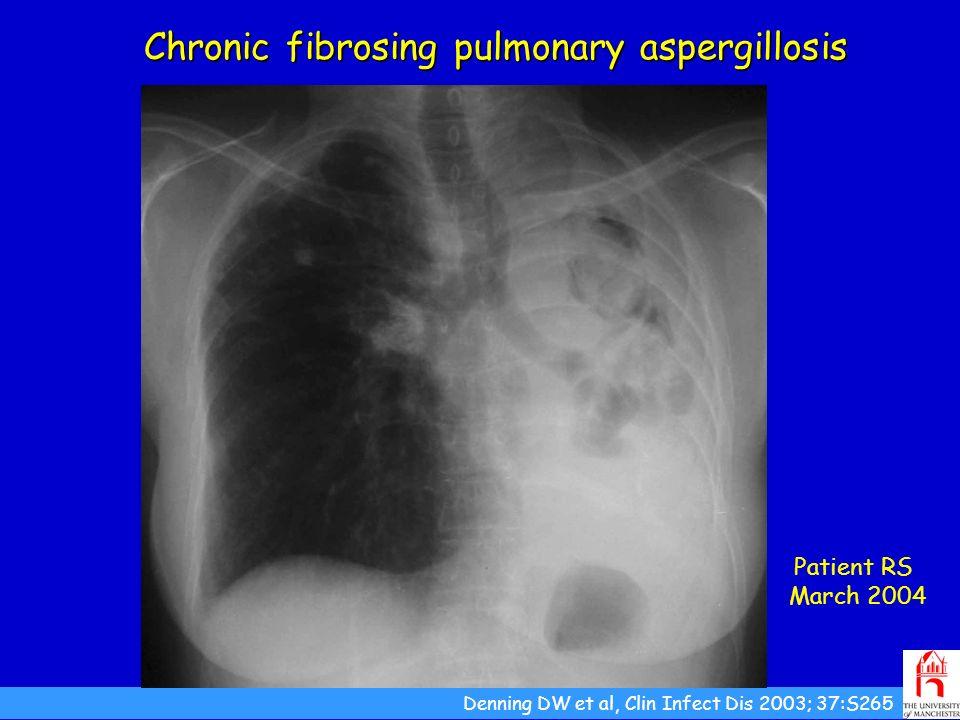 Chronic fibrosing pulmonary aspergillosis Patient RS March 2004 Denning DW et al, Clin Infect Dis 2003; 37:S265