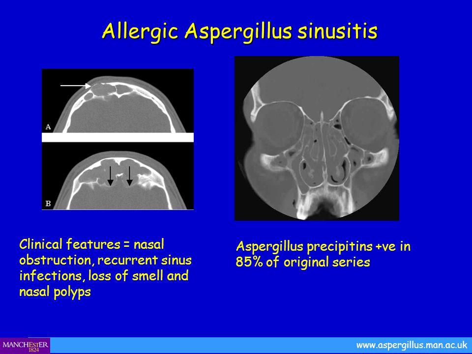 www.aspergillus.man.ac.uk Allergic Aspergillus sinusitis Allergic Aspergillus sinusitis Clinical features = nasal obstruction, recurrent sinus infecti
