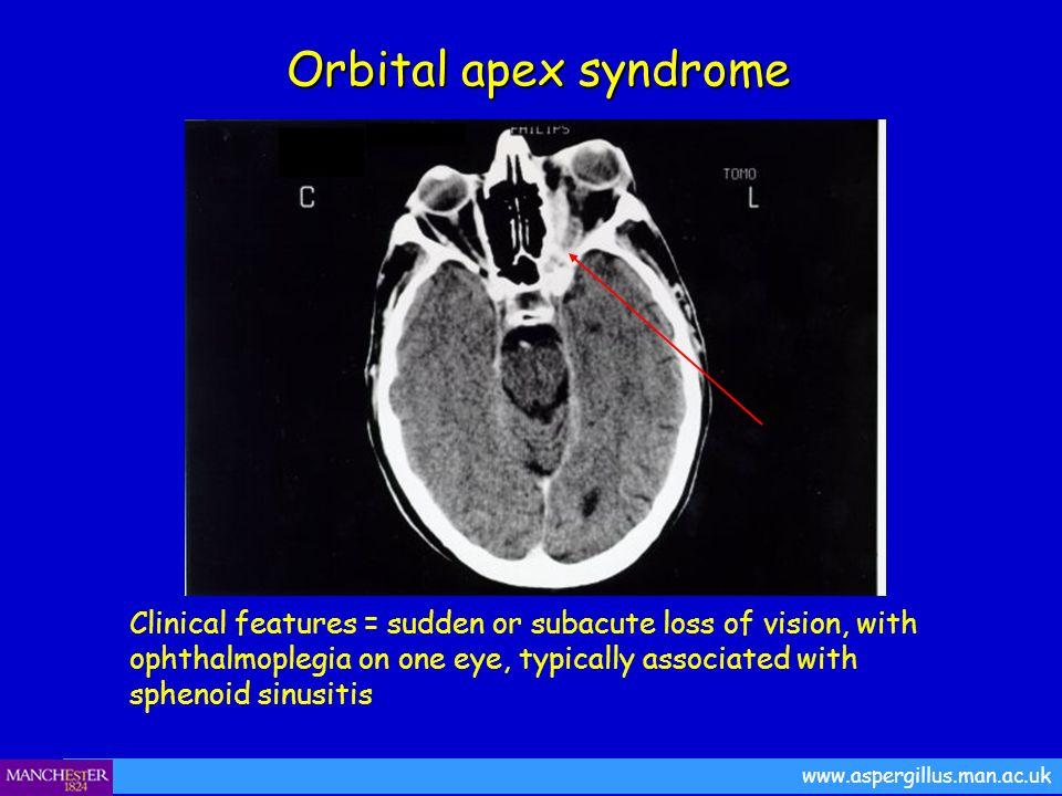 www.aspergillus.man.ac.uk Orbital apex syndrome Orbital apex syndrome Clinical features = sudden or subacute loss of vision, with ophthalmoplegia on o
