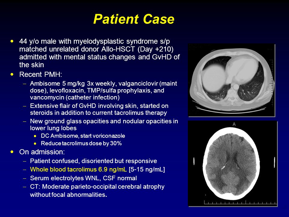 2 Patient Case 44 y/o male with myelodysplastic syndrome s/p matched unrelated donor Allo-HSCT (Day +210) admitted with mental status changes and GvHD