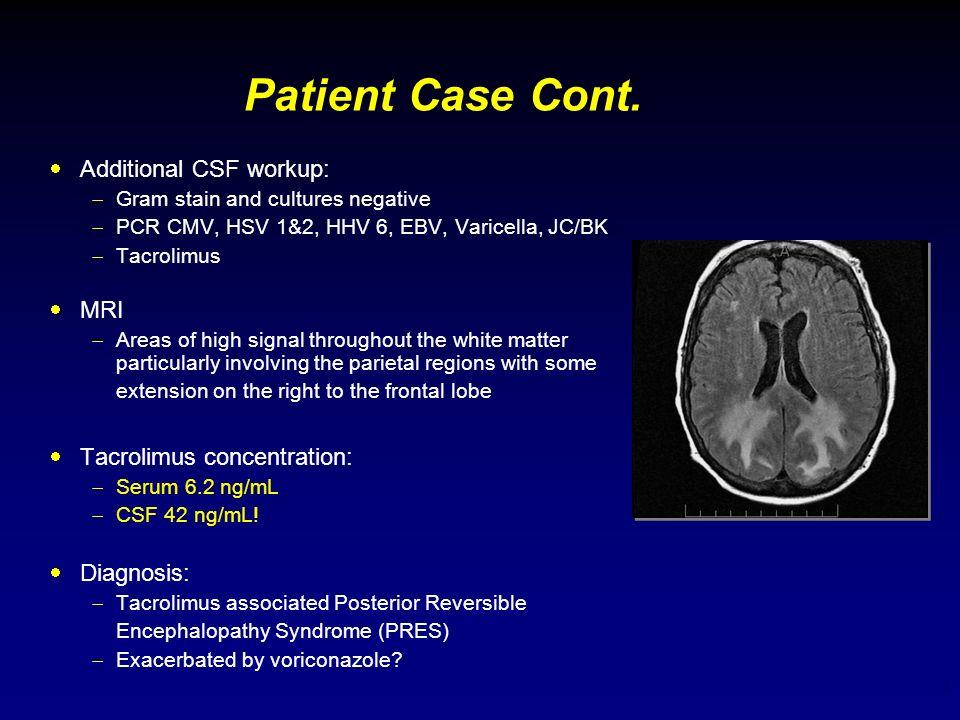 3 Patient Case Cont. Additional CSF workup: Gram stain and cultures negative PCR CMV, HSV 1&2, HHV 6, EBV, Varicella, JC/BK Tacrolimus MRI Areas of hi