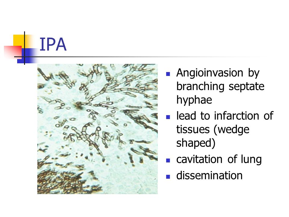 IPA Angioinvasion by branching septate hyphae lead to infarction of tissues (wedge shaped) cavitation of lung dissemination