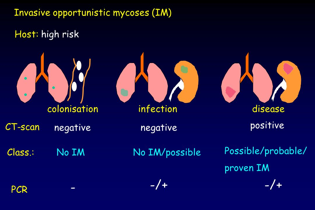 Invasive opportunistic mycoses (IM) colonisationinfectiondisease Class.:No IMNo IM/possible Possible/probable/ proven IM Host: high risk CT-scan negat