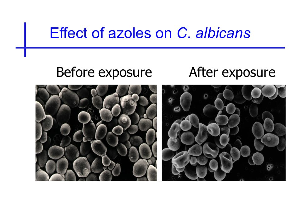 Effect of azoles on C. albicans Before exposureAfter exposure