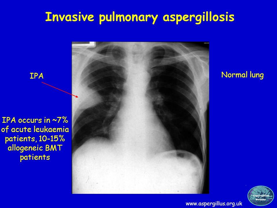 Invasive pulmonary aspergillosis www.aspergillus.org.uk Normal lung IPA IPA occurs in ~7% of acute leukaemia patients, 10-15% allogeneic BMT patients