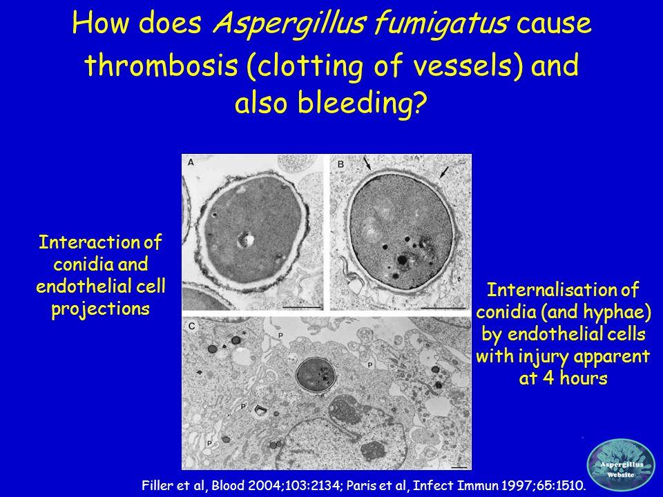 How does Aspergillus fumigatus cause thrombosis (clotting of vessels) and also bleeding? Filler et al, Blood 2004;103:2134; Paris et al, Infect Immun