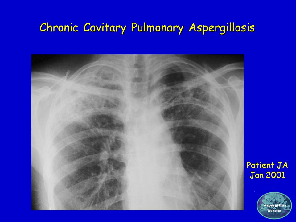 Chronic Cavitary Pulmonary Aspergillosis Patient JA Jan 2001