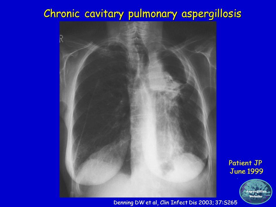 Chronic cavitary pulmonary aspergillosis Patient JP June 1999 Denning DW et al, Clin Infect Dis 2003; 37:S265