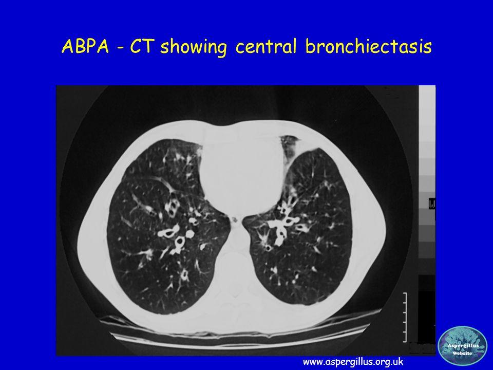 ABPA - CT showing central bronchiectasis www.aspergillus.org.uk