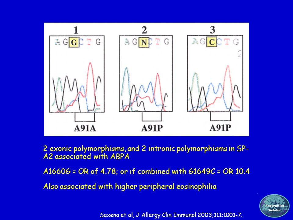 ABPA – surfactant defects 2 exonic polymorphisms, and 2 intronic polymorphisms in SP- A2 associated with ABPA A1660G = OR of 4.78; or if combined with