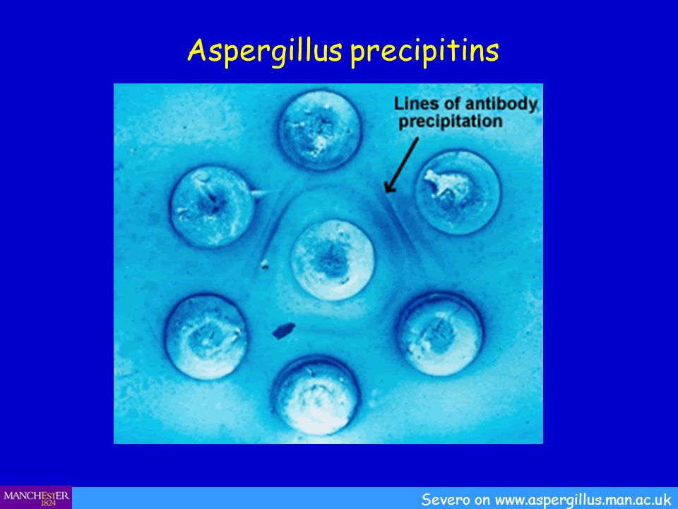 Aspergillus precipitins Severo on www.aspergillus.man.ac.uk