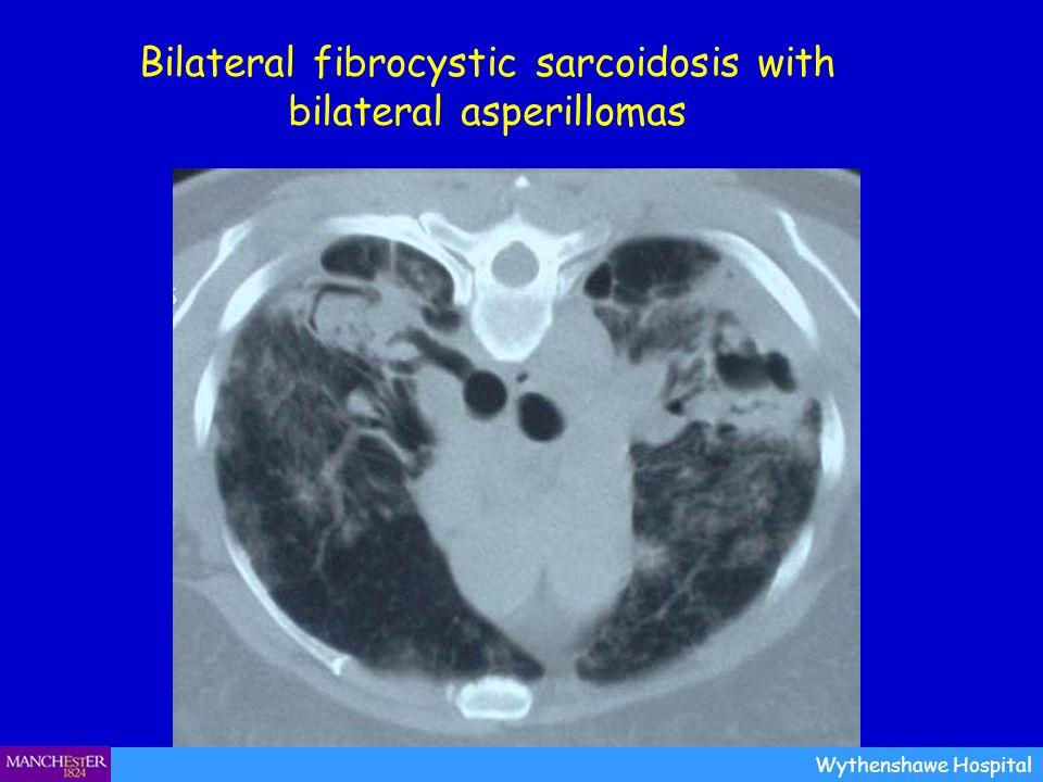 Bilateral fibrocystic sarcoidosis with bilateral asperillomas Wythenshawe Hospital