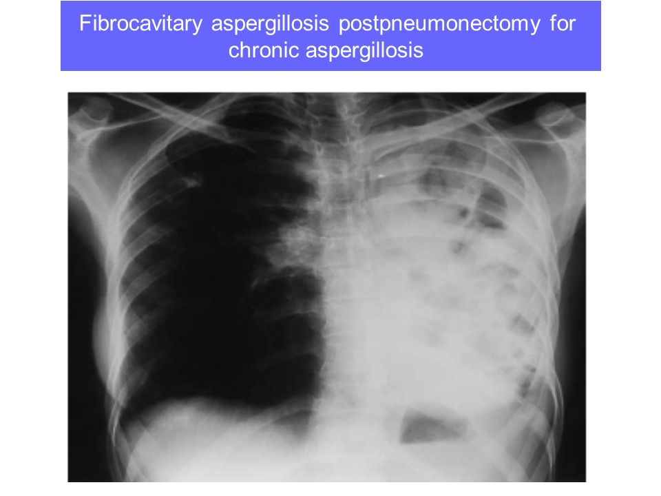 Fibrocavitary aspergillosis postpneumonectomy for chronic aspergillosis