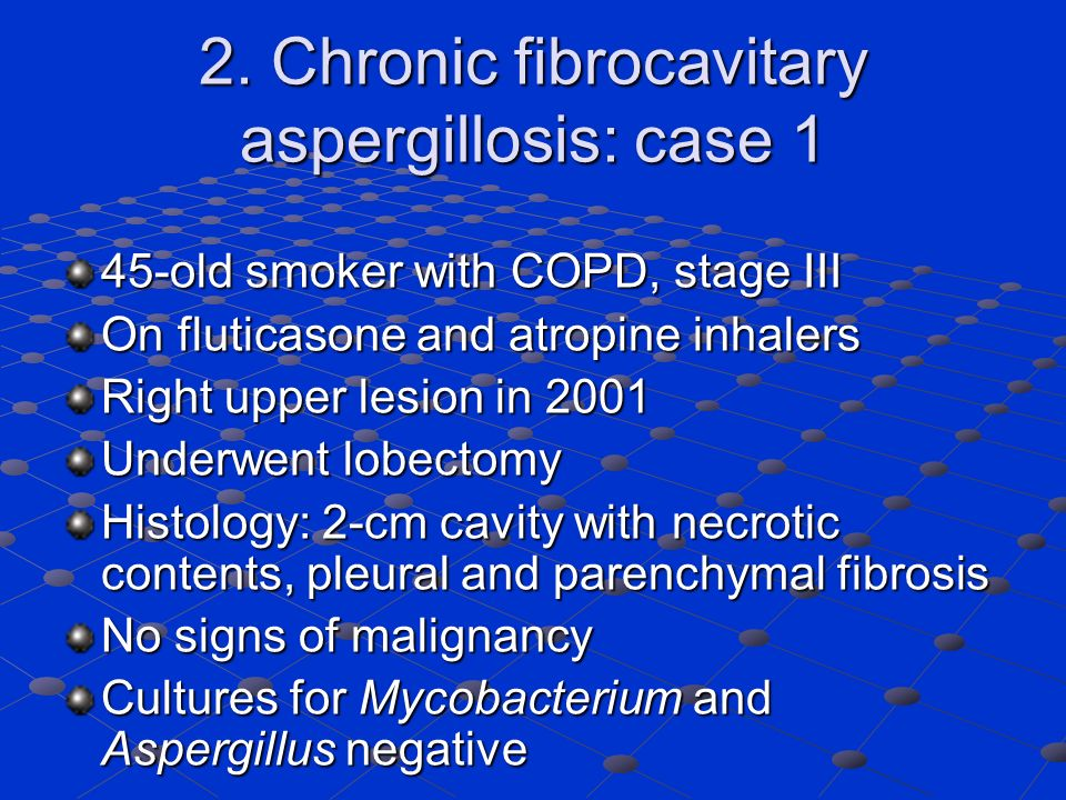 2. Chronic fibrocavitary aspergillosis: case 1 45-old smoker with COPD, stage III On fluticasone and atropine inhalers Right upper lesion in 2001 Unde