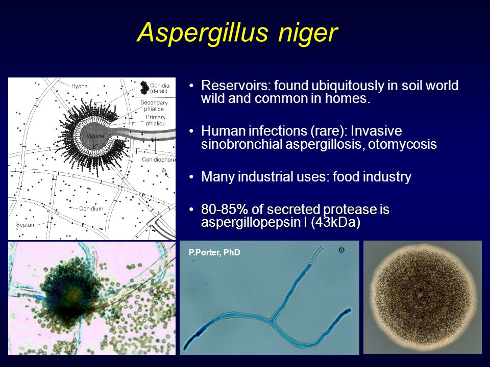 Aspergillus niger Reservoirs: found ubiquitously in soil world wild and common in homes.