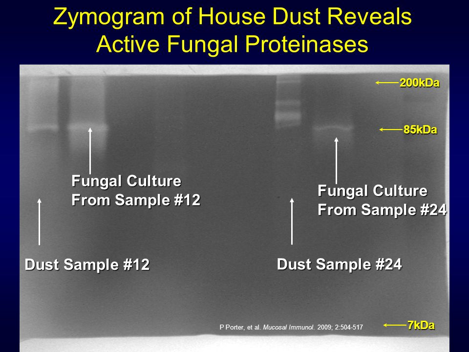 Dust Sample #12 Fungal Culture From Sample #12 Dust Sample #24 Fungal Culture From Sample #24 85kDa 200kDa 7kDa Zymogram of House Dust Reveals Active Fungal Proteinases P Porter, et al.