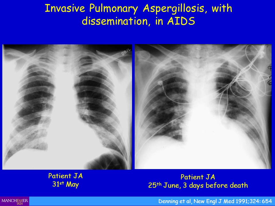 Invasive Pulmonary Aspergillosis, with dissemination, in AIDS Patient JA 31 st May Denning et al, New Engl J Med 1991;324: 654 Patient JA 25 th June,