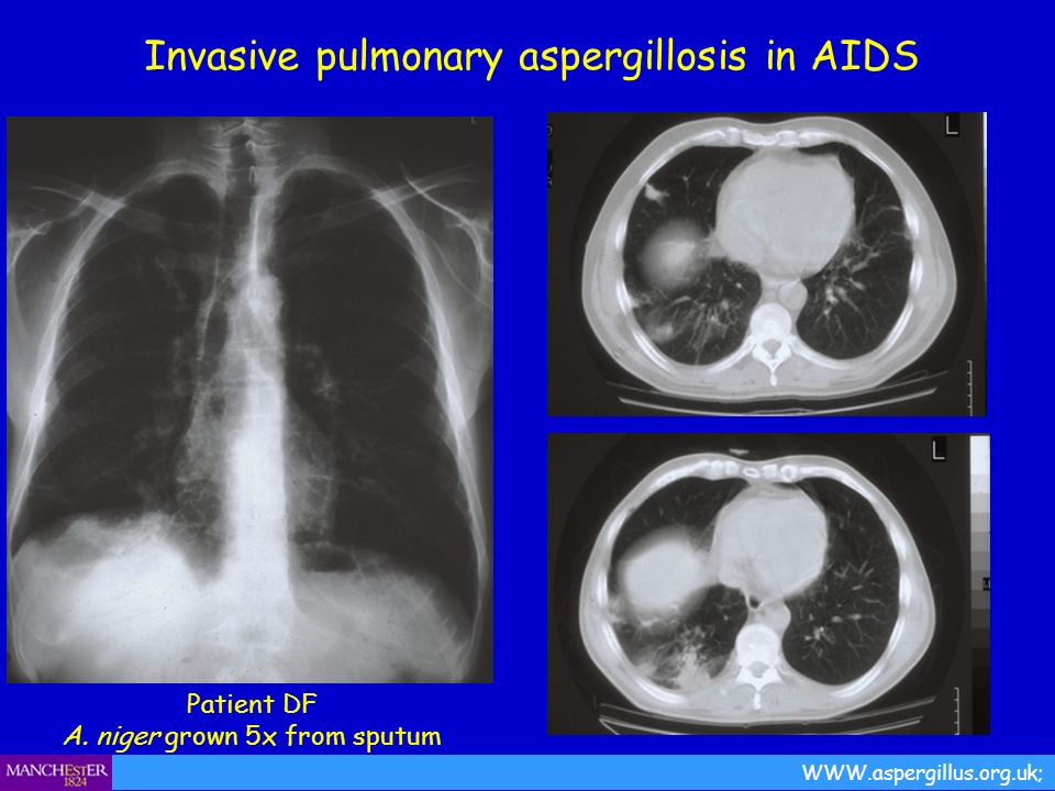Invasive pulmonary aspergillosis in AIDS WWW.aspergillus.org.uk; Patient DF A. niger grown 5x from sputum
