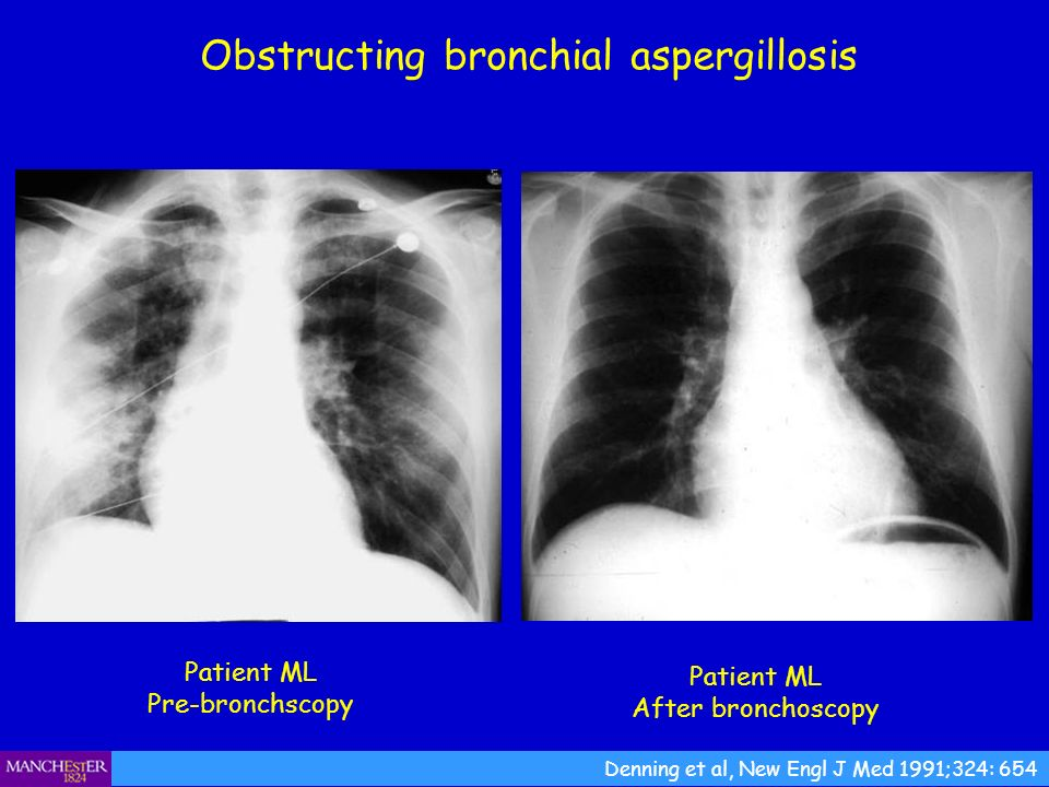 Obstructing bronchial aspergillosis Patient ML Pre-bronchscopy Denning et al, New Engl J Med 1991;324: 654 Patient ML After bronchoscopy