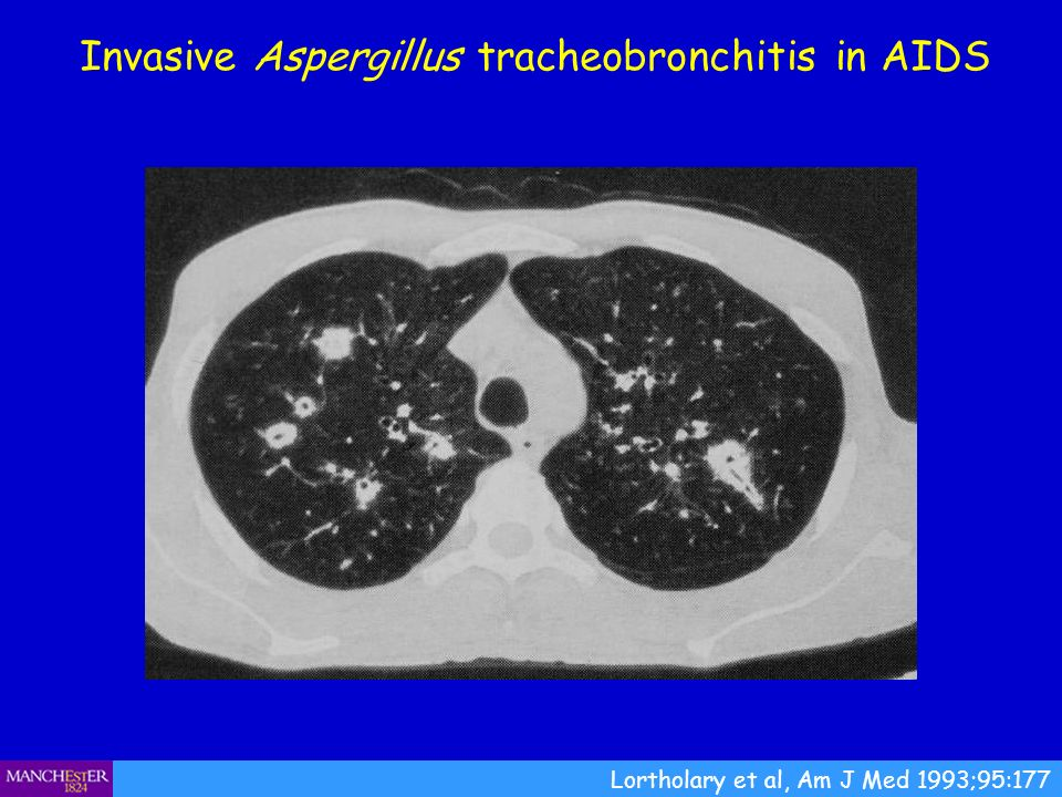 Invasive Aspergillus tracheobronchitis in AIDS Lortholary et al, Am J Med 1993;95:177