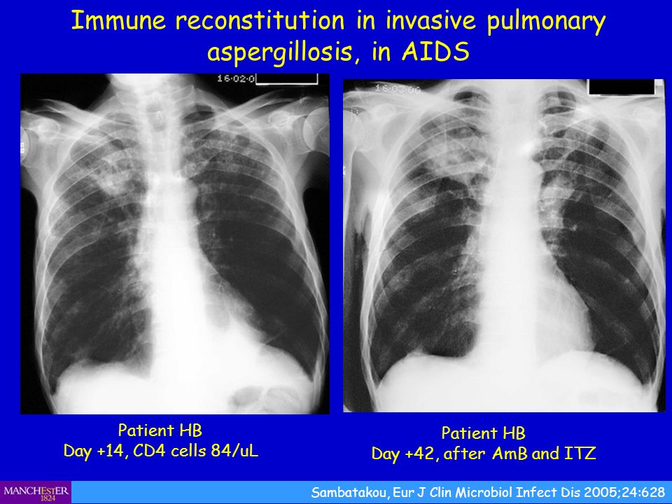 Immune reconstitution in invasive pulmonary aspergillosis, in AIDS Patient HB Day +14, CD4 cells 84/uL Sambatakou, Eur J Clin Microbiol Infect Dis 200