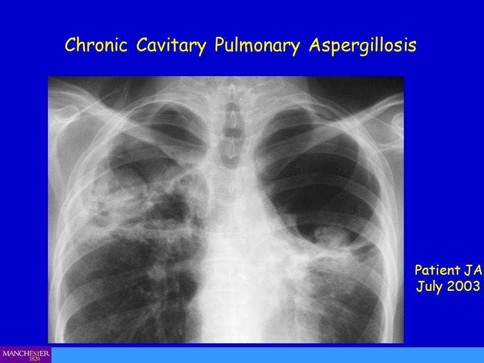 Chronic Cavitary Pulmonary Aspergillosis Patient JA July 2003