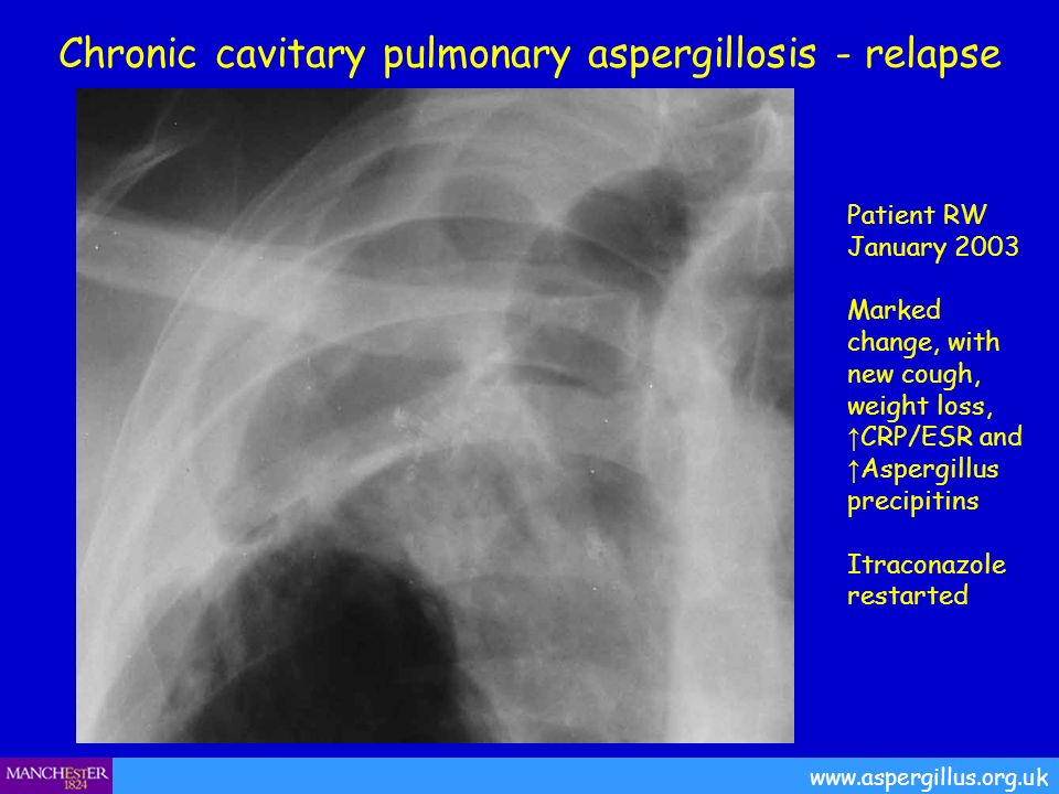 Chronic cavitary pulmonary aspergillosis - relapse Patient RW January 2003 Marked change, with new cough, weight loss, CRP/ESR and Aspergillus precipi