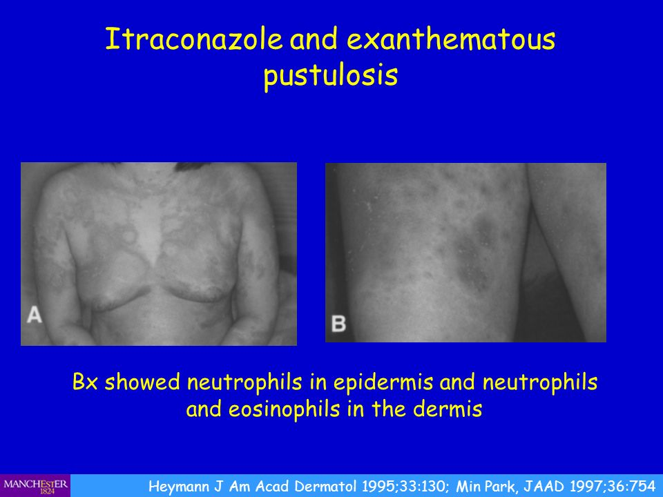 Itraconazole and exanthematous pustulosis Heymann J Am Acad Dermatol 1995;33:130; Min Park, JAAD 1997;36:754 Bx showed neutrophils in epidermis and ne