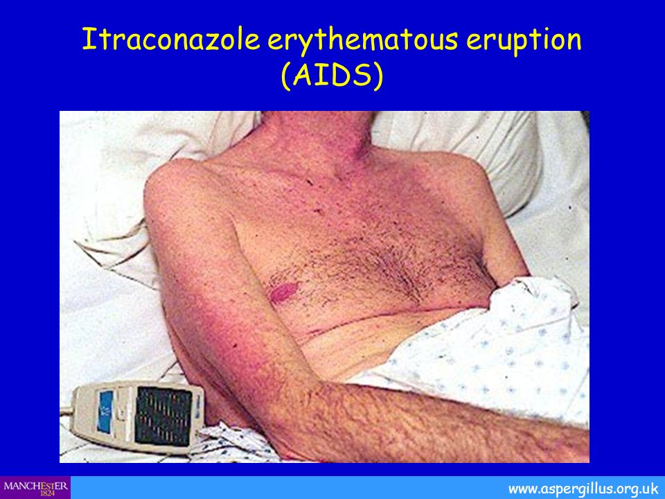 Itraconazole and reported cutaneous reactions in the literature Unpublished Adverse eventsNumber of patients Total number patients9065 Cutaneous side effects Rash/pruritus250 Alopecia19 Site reaction / vasculitis4 Steven-Johnson syndrome2 Hirsuitism1 Photosensitivity1 Diaphoresis1