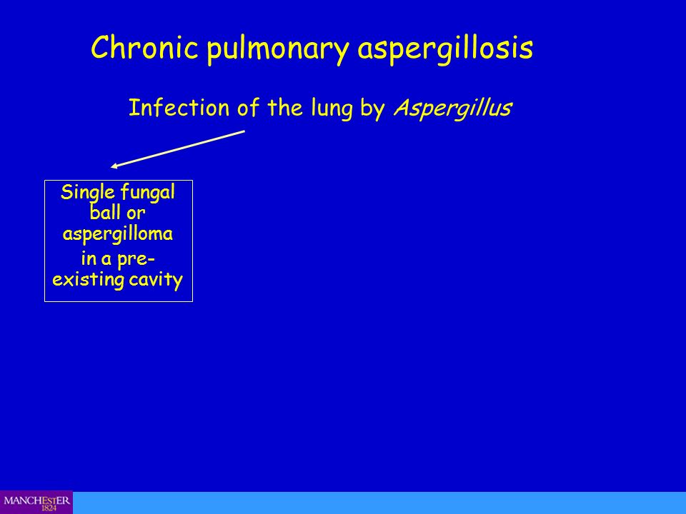 Chronic pulmonary aspergillosis Single fungal ball or aspergilloma in a pre- existing cavity Infection of the lung by Aspergillus
