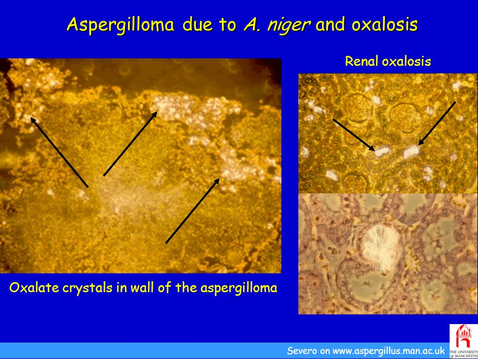 Aspergilloma due to A. niger and oxalosis Oxalate crystals in wall of the aspergilloma Severo on www.aspergillus.man.ac.uk Renal oxalosis