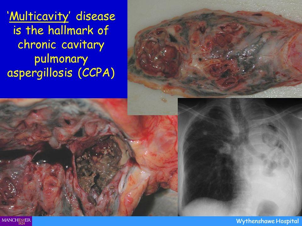 Multicavity disease is the hallmark of chronic cavitary pulmonary aspergillosis (CCPA) Wythenshawe Hospital