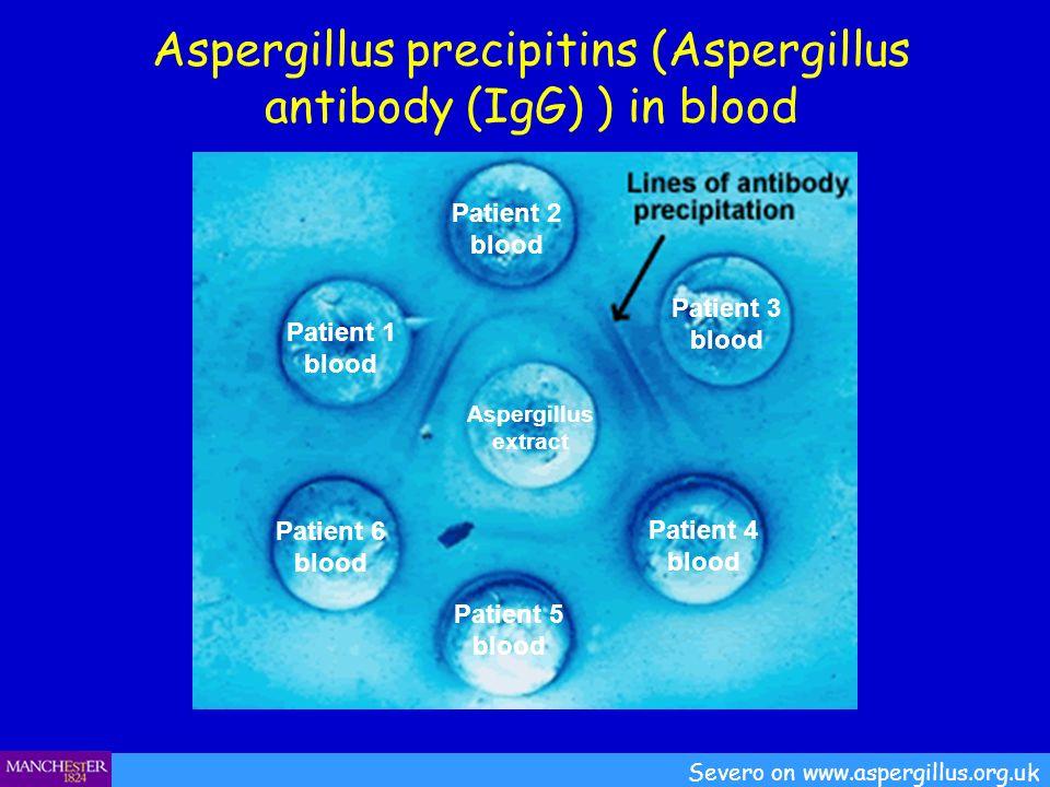 Aspergillus precipitins (Aspergillus antibody (IgG) ) in blood Severo on www.aspergillus.org.uk Patient 1 blood Patient 2 blood Patient 3 blood Patien