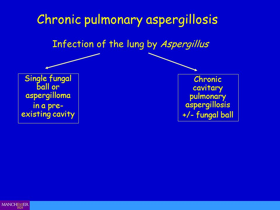 Chronic pulmonary aspergillosis Single fungal ball or aspergilloma in a pre- existing cavity Infection of the lung by Aspergillus Chronic cavitary pul