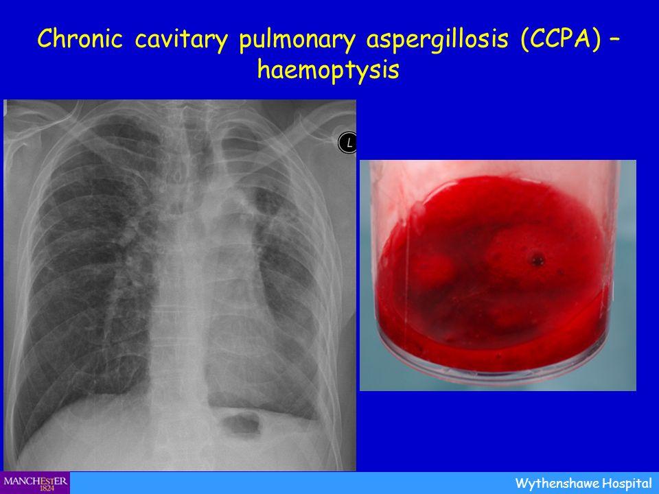 Chronic cavitary pulmonary aspergillosis (CCPA) – haemoptysis Wythenshawe Hospital