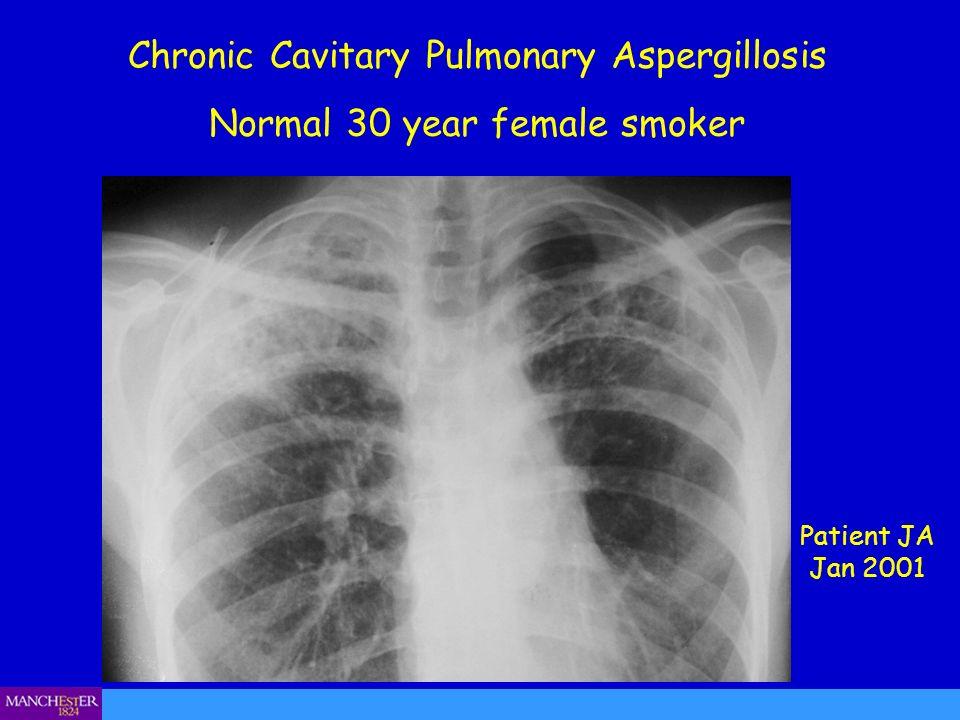 Chronic Cavitary Pulmonary Aspergillosis Normal 30 year female smoker Patient JA Jan 2001