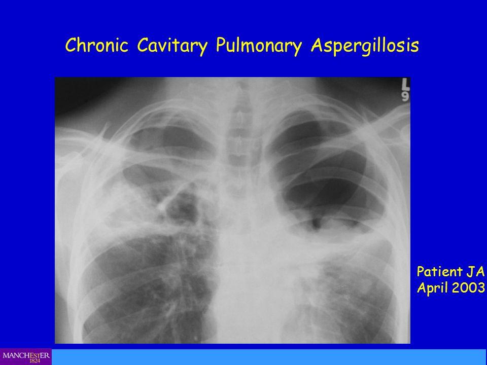 Chronic Cavitary Pulmonary Aspergillosis Patient JA April 2003