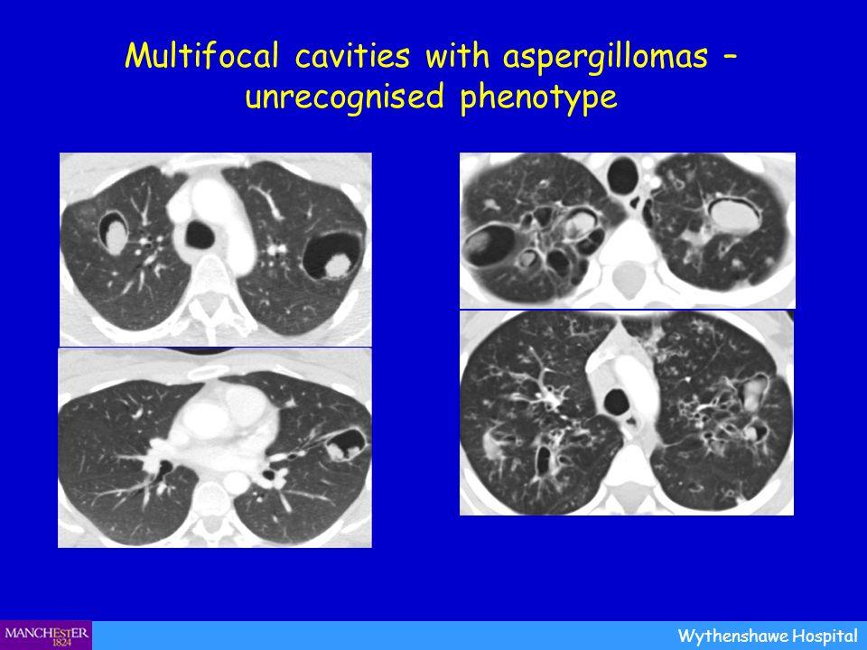 Multifocal cavities with aspergillomas – unrecognised phenotype Wythenshawe Hospital