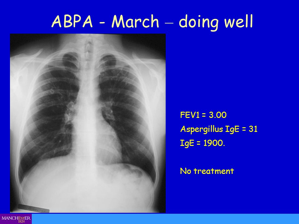 ABPA - March – doing well FEV1 = 3.00 Aspergillus IgE = 31 IgE = 1900. No treatment