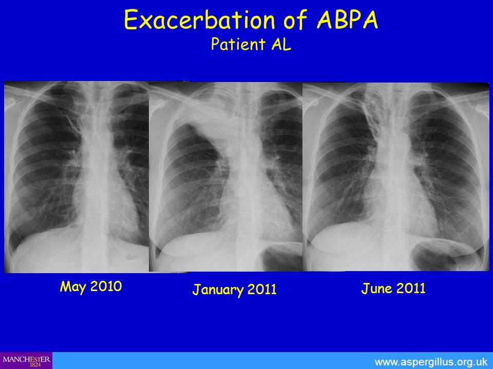 Exacerbation of ABPA Patient AL www.aspergillus.org.uk May 2010 January 2011 June 2011