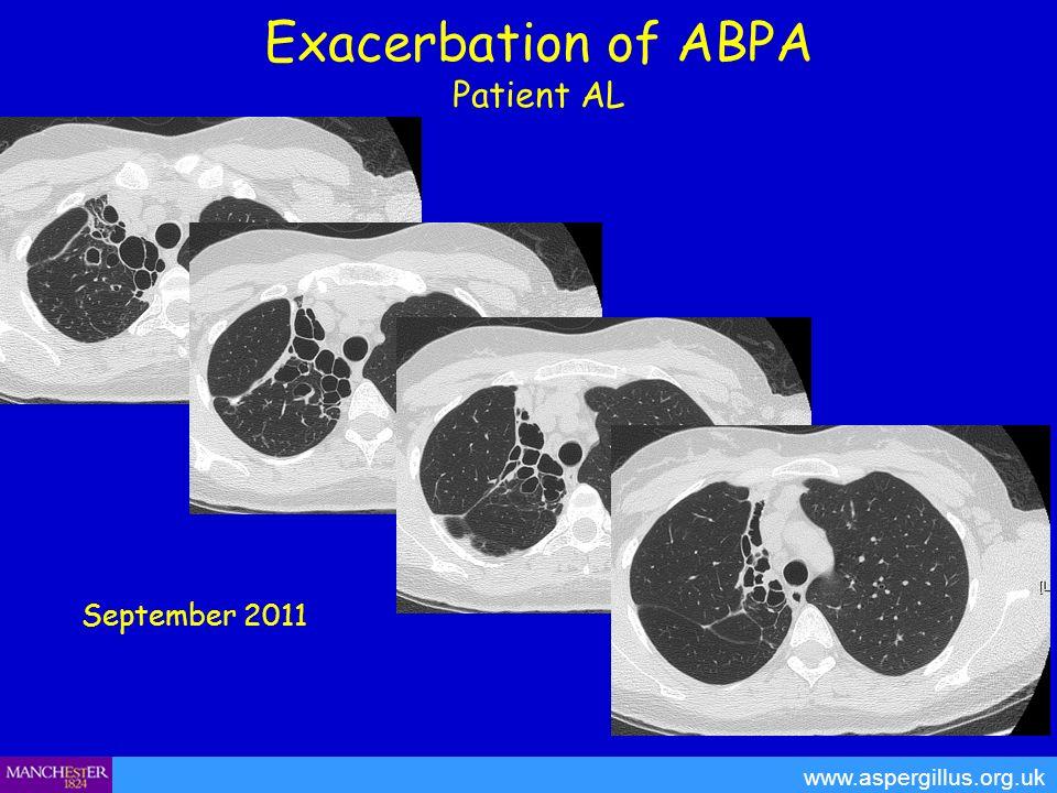 Exacerbation of ABPA Patient AL www.aspergillus.org.uk September 2011