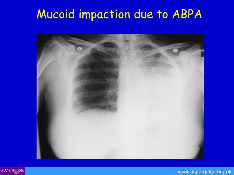 Mucoid impaction due to ABPA www.aspergillus.org.uk