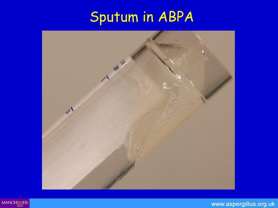 Sputum in ABPA www.aspergillus.org.uk