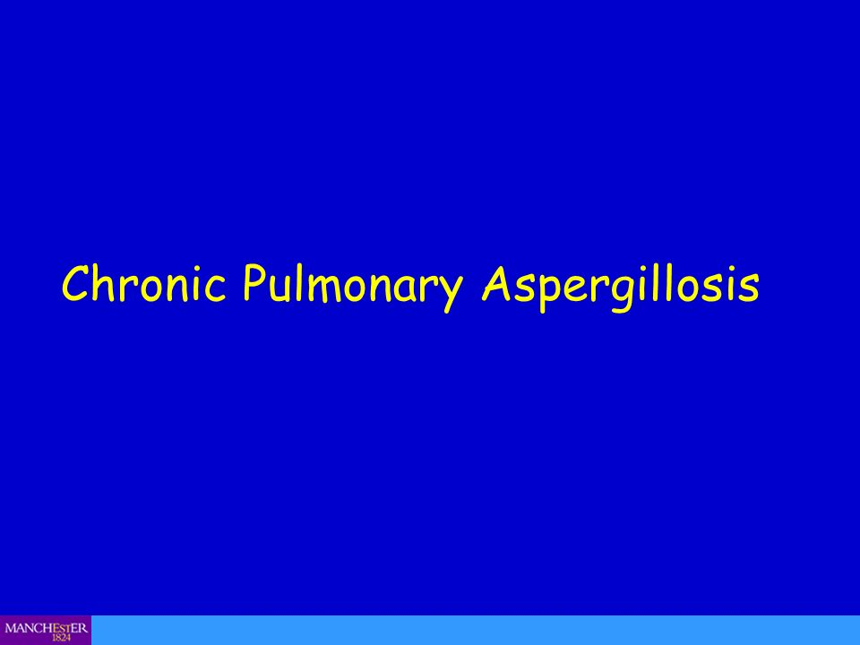 Chronic cavitary pulmonary aspergillosis (CCPA) – sputum production Wythenshawe Hospital Aspergillus cultures positive in CCPA in 10-40% of cases only